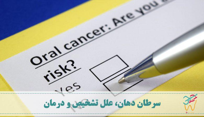 سرطان دهان، علت سرطان دهان و درمان سرطان دهان