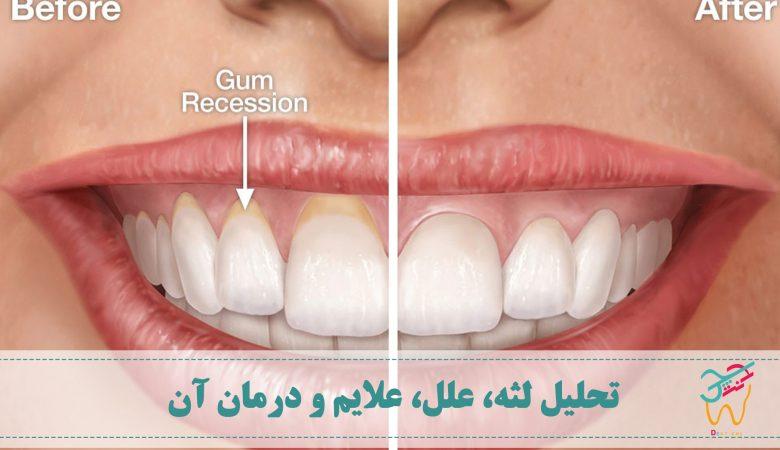 تحلیل لثه (به انگلیسی: gum recession) شرایطی است که در آن لثه ها شروع به عقب رفتن از سطح دندان ها می کنند تا جایی که ممکن است ریشه های دندان ها در معرض قرار بگیرند. تحلیل لثه یکی از انواع بیماری پریودنتال است و نتیجه ی بهداشت ضعیف دهان و دندان است.