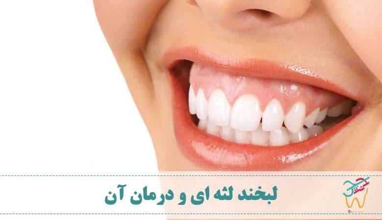 به لبخندی که در آن لثه ها بیش از حد مشخص باشد، لبخند لثه ای (به انگلیسی: gummy smile) گفته می شود. برای درمان لبخند لثه ای نیاز به دانستن علت آن داریم.