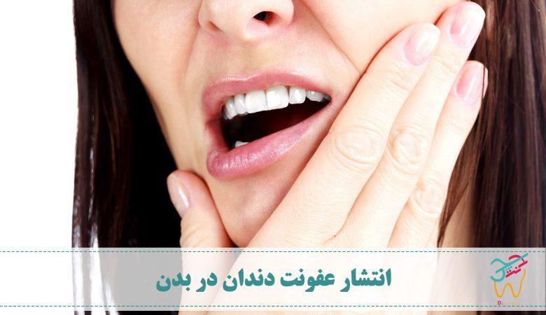 انتشار عفونت دندان در بدن و پخش شدن عفونت بدن در سایر اندام ها