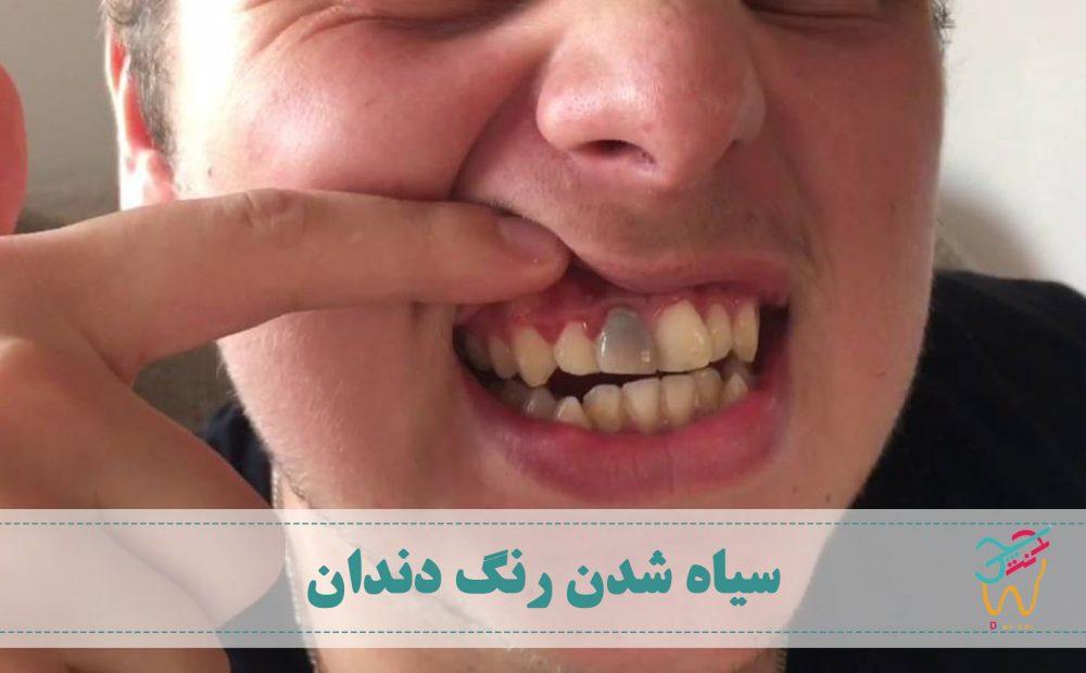 سیاه شدن رنگ دندان ها می تواند نشان دهنده ی ابتلا به یکی از بیماری های دهان و دندان باشد. رنگ دندان ها معمولا سفید، زرد مایل به سفید و خاکستری مایل به سفید است.