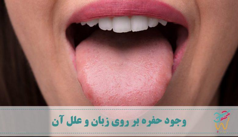 اکثر افراد با مشاهده ی حفره روی زبان یا سوراخ بر روی زبان خود تصور می کنند که دچار سرطان زبان شده اند. اما باید بدانید که احتمال ابتلا به این سرطان بسیار کم است. مطالعات نشان می دهد که شانس ابتلا به سرطان زبان در مقایسه با سایر سرطان ها تنها یک درصد است.
