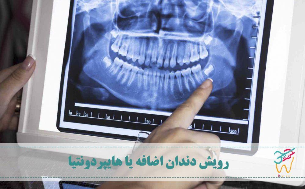 رویش دندان های اضافه در دهان را هایپردونتیا (به انگلیسی: hyperdontia) می نامند.