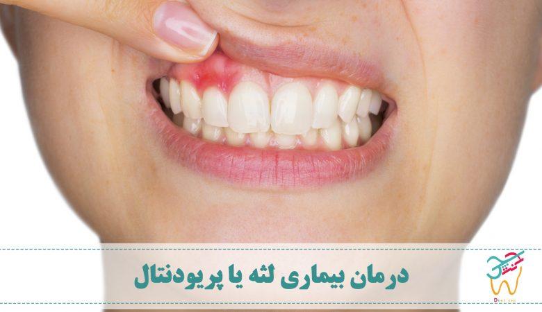 عفونت در ساختارهای اطراف دندان باعث بیماری لثه یا بیماری پریودنتال (به انگلیسی: periodontal disease) می شود و روش های زیادی برای درمان بیماری لثه وجود دارد