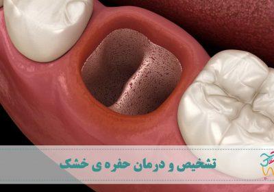 حفره ی خشک یا درای ساکت (به انگلیسی: Dry socket) معمولا بعد از کشیدن دندان ایجاد می شود. به این عارضه ورم استخوان سوراخدار یا اُستئیت آلوئولار (به انگلیسی: Alveolar osteitis) و آرَکآماس هم میگویند.