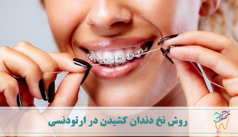 تمیز کردن دندان ها و روش نخ دندان کشیدن در ارتودنسی اهمیت دو چندان دارد چرا که با وجود براکت ها و سیم ها تمیز کردن دندان ها دشوارتر است.