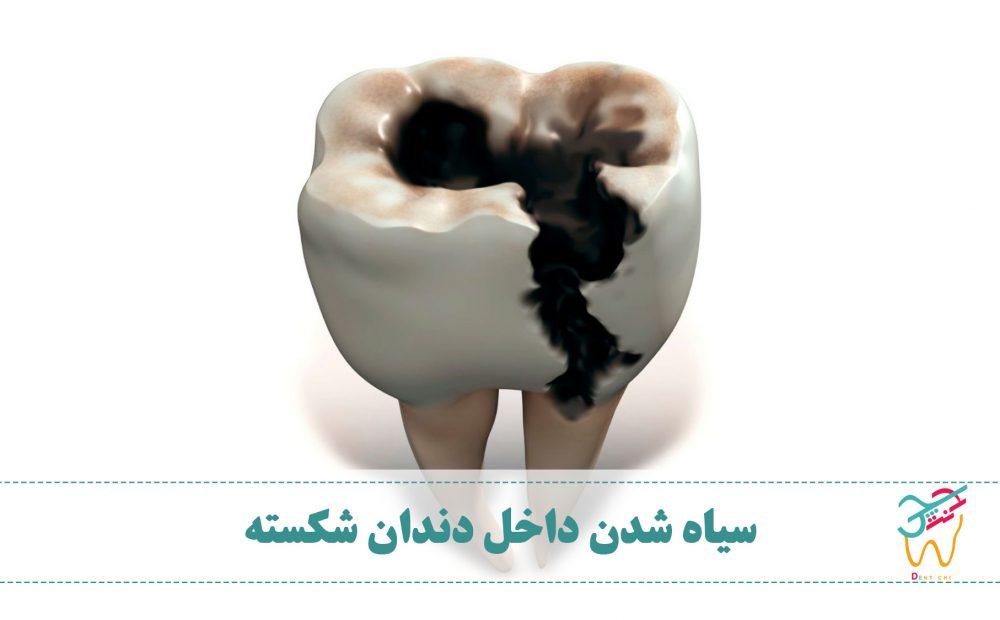 سیاه شدن داخل دندان شکسته طبیعی نیست. اگر داخل دندان سیاه یا قهوه ای باشد ممکن است دچار پوسیدگی شده باشد. بنابراین بهتر است به دندانپزشک مراجعه کنید.