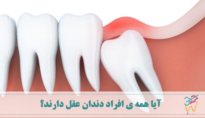 فقدان دندان عقل، دلیل نداشتن دندان عقل، آیا همه دندان عقل دارند