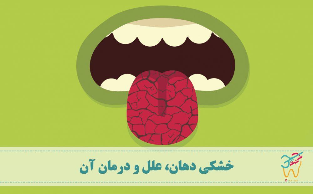 خشکی دهان و خشک شدن دهان و درمان خشکی دهان و علت خشکی دهان